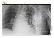 X-ray Of A Pacemaker Carry-all Pouch