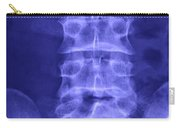 X-ray Of Lower Lumbar Spine Carry-all Pouch