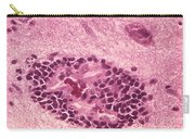 Rabies Virus, Lm Carry-all Pouch