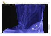 X-ray Of A Childs Light-up Boot Carry-all Pouch