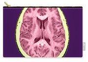 Normal Cross Sectional Mri Of The Brain Carry-all Pouch