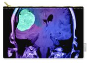 Right Sided Meningioma Carry-all Pouch