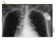 X-ray Of Implanted Defibulator Carry-all Pouch