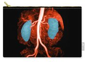 Abdominal Aorta, Kidneys And Iliac Carry-all Pouch