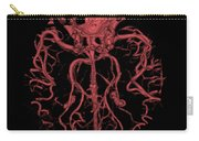 Intracranial Ct Angiogram Carry-all Pouch