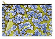 Methicillin-resistant Staphylococcus Carry-all Pouch
