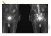 Bone Scan Carry-all Pouch by Medical Body Scans