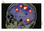 Brain Tumors Carry-all Pouch