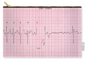Cardioversion, 1 Of 2 Carry-all Pouch