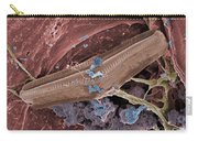 Diatom With Thermophilic Bacteria Carry-all Pouch