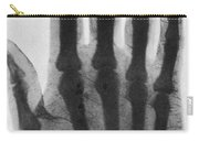 Early X-ray, 1897 Carry-all Pouch