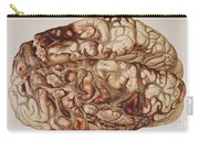 Encircling Gunshot-wound In Brain, 1898 Carry-all Pouch