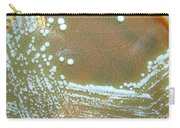 Francisella Tularensis Culture Carry-all Pouch
