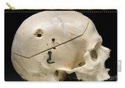 Gunshot Trauma To Skull, 1950s Carry-all Pouch