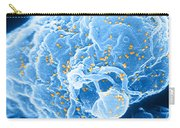 Hiv-1 Infected T4 Lymphocyte Sem Carry-all Pouch by Science Source