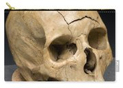 Keyhole Gunshot Trauma, 1860s Carry-all Pouch by Science Source