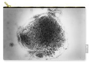 Measles Virus Carry-all Pouch by Science Source