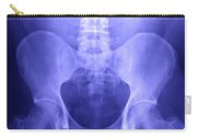 Pelvic X-ray Carry-all Pouch