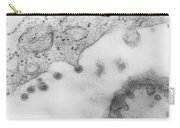 Rubella Virus Carry-all Pouch by Science Source