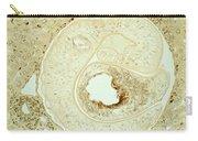 Schistosoma Mansoni Carry-all Pouch