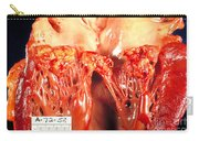Subacute Bacterial Endocarditis Carry-all Pouch