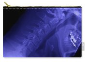 X-ray Of A Cervical Spine Carry-all Pouch