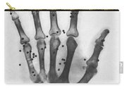 X-ray Of A Hand With Buckshot Carry-all Pouch