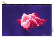 Cancer Cell Death, Sem 6 Of 6 Carry-all Pouch