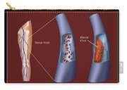 Deep Vein Thrombosis, Illustration Carry-all Pouch