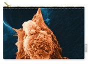 Metastasis Carry-all Pouch by Science Source