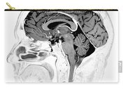 Normal Brain, Mri Carry-all Pouch