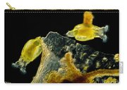Rotifers Philodina Sp., Lm Carry-all Pouch