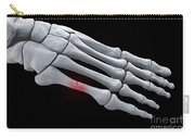 Broken Metatarsal Carry-all Pouch