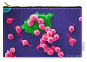 Cancer Cell Death, Sem 2 Of 6 Carry-all Pouch