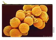 Cedar Pollen Sem Carry-all Pouch by Susumu Nishinaga and SPL and Photo Researchers