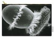 Didinium Ingesting A Paramecium Carry-all Pouch