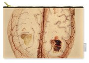 Extravasated Blood, Brain Carry-all Pouch