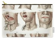 Facial Surgery, Illustration, 1846 Carry-all Pouch