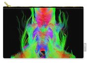 Fiber Tracts Of The Brain, Dti Carry-all Pouch