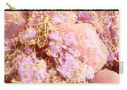 Human Intestinal Mucosa, Sem Carry-all Pouch