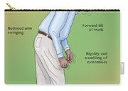 Man With Parkinsons Disease Carry-all Pouch