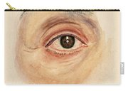 Melanoma Of Iris, Medical Illustration Carry-all Pouch