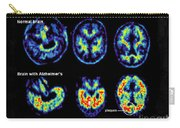 Normal And Alzheimer Brains, Pet Scans Carry-all Pouch