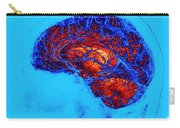 Normal Brain, Swi Mri Carry-all Pouch