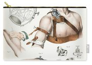 Operative Surgery, Illustration, 1846 Carry-all Pouch