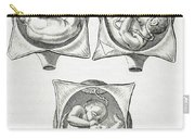 Pregnancy Complications, Illustration Carry-all Pouch