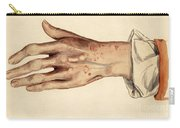 Psoriasis Guttata, Illustration, 1887 Carry-all Pouch