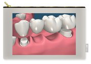 Restorations For Missing Teeth Implants, Dentures And Bridges Carry-all Pouch