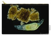 Rotifer Philodina Sp., Lm Carry-all Pouch