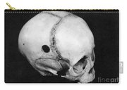 Trepanning: Skull Carry-all Pouch